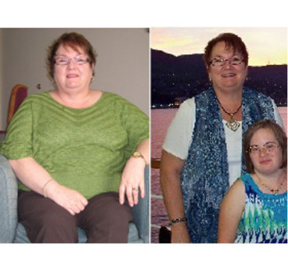 Lucy Lost 50 Pounds With Gastric Bypass Hypnosis