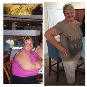 barbara-before-and-after-100-lbs